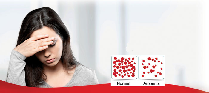 Anaemic girl with representation of red blood cells