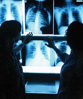 Radiologists looking at an x-ray